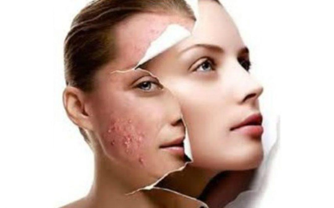Acne e espinha: a diferença e o tratamento