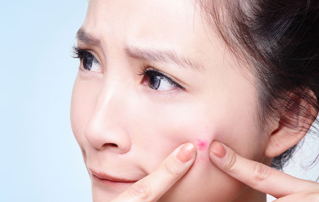 acne-espinha-como-tratar