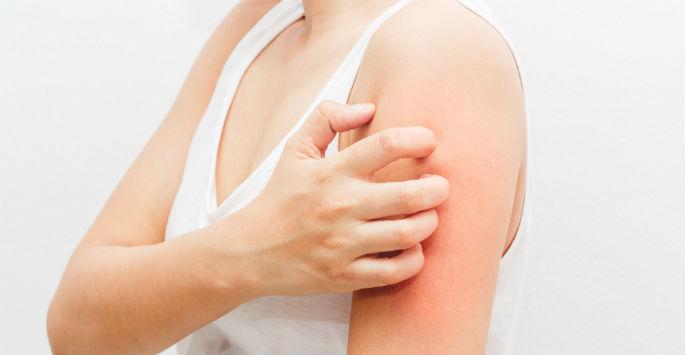Você sabe o que é psoríase e como a doença pode afetar a aparência da sua pele?