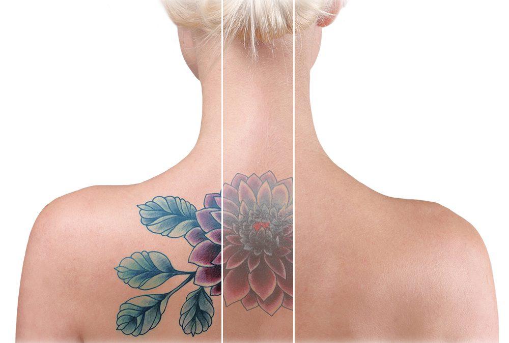 Remoção de tatuagem é possível? Confira os mitos e verdades
