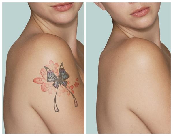 remocao-de-tatuagem-2