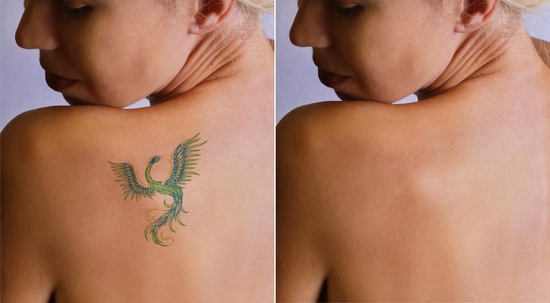 remocao-de-tatuagem-4