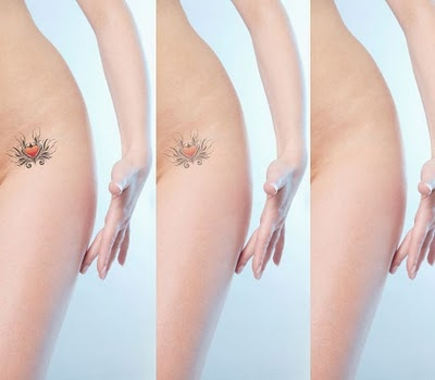 remocao-de-tatuagem-5